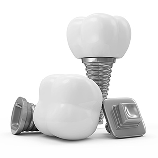 Dental Implants and Cosmetic Dentist near commerce