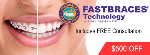 Fastbraces offered at our Walled Lake Dental Practice