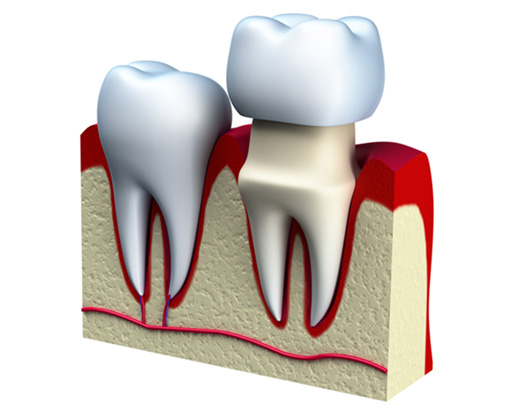 Dental Crowns Offered at you local Walled Lake Michigan Dentist