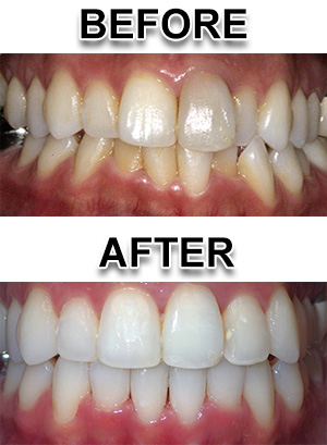 Waterford Michigan braces and fastbraces