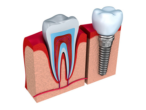Dental Implants - Livoina Michigan Dentist